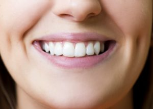 beautiful-girl-is-showing-her-white-teeth-at-dentist